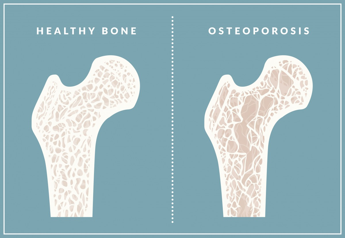Healthy bone, left, resembles a web or honeycomb. With osteoporosis, the bone weakens and spaces develop, which increases the risk of fractures.